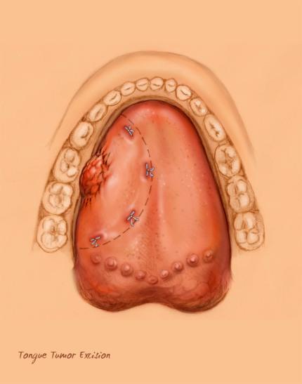 tongue tumor excision